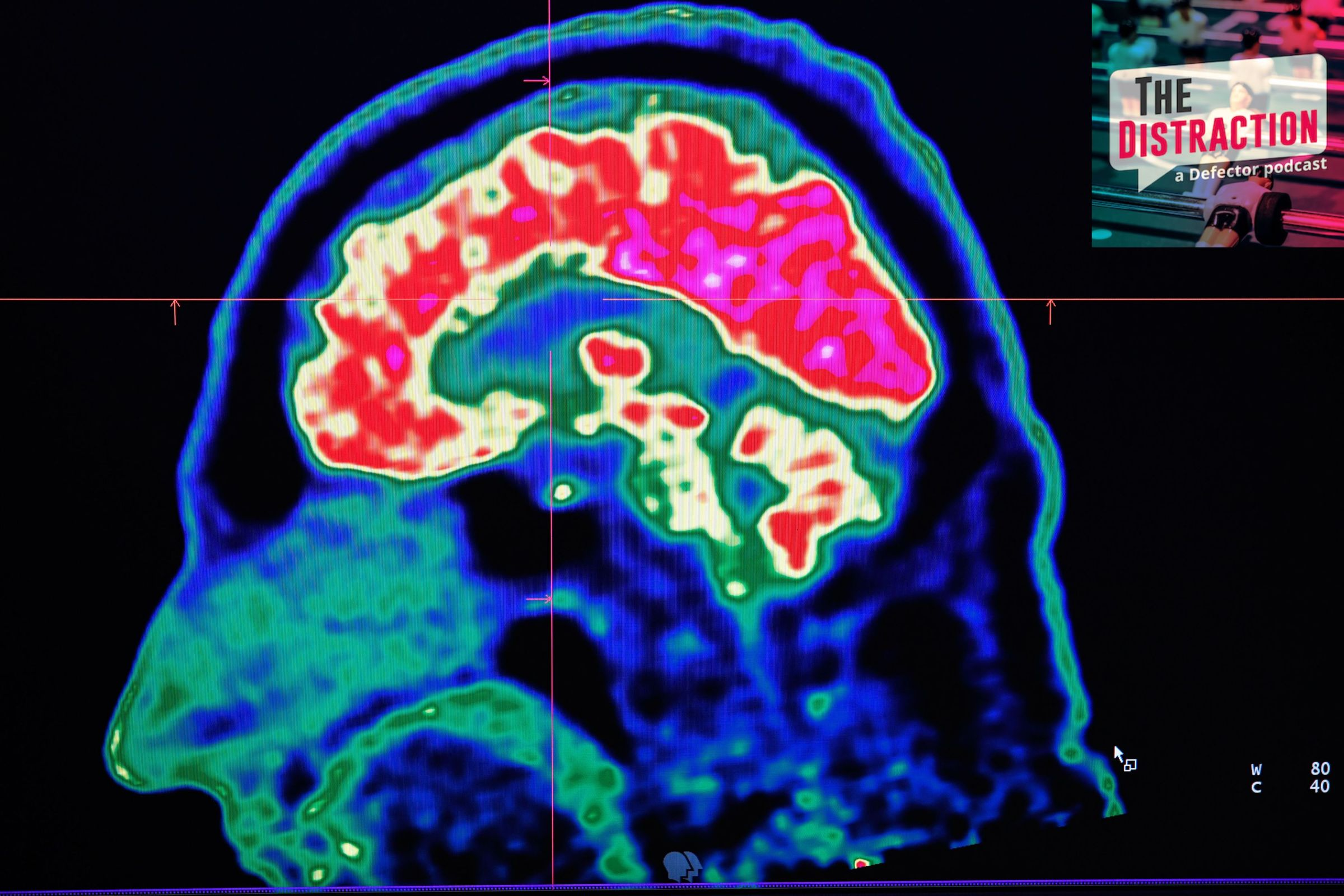 A picture of a human brain taken by a positron emission tomography scanner.